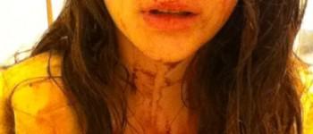 TT: 2500 euro voor tip gooier wijnfles en beroving gewond meisje