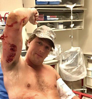 Freek Vonk aangevallen en gebeten door haai