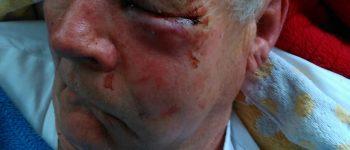 Hengelo – Gezocht – Agressieve man slaat hondenbezitter